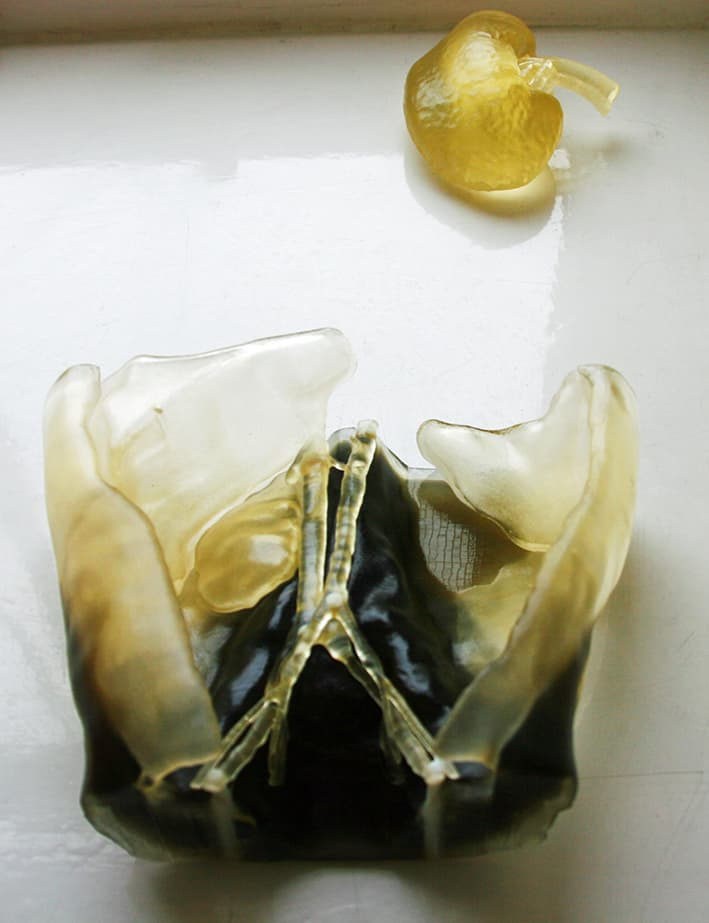 surgical 3d printing